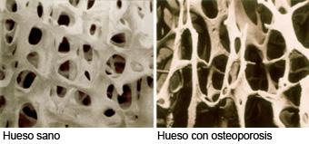 huesoconosteoporosis