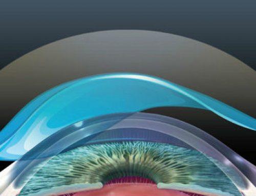 Primer impermeabilizante de la superficie ocular