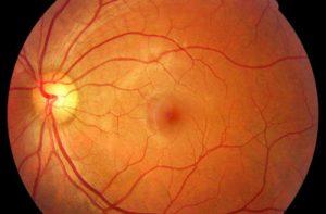 DMAE degeneracion macular salud ocular