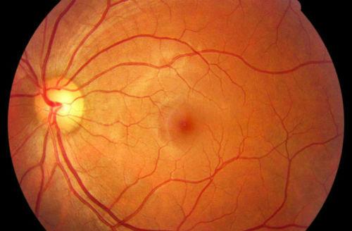 Degeneracón macular asociada a la edad DMAE