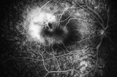 Edema macular diabetico Salud ocular