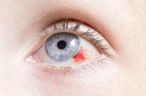 lesion-cornea-brillpharma