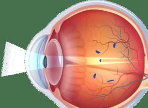 moscas flotantes dentro del ojo