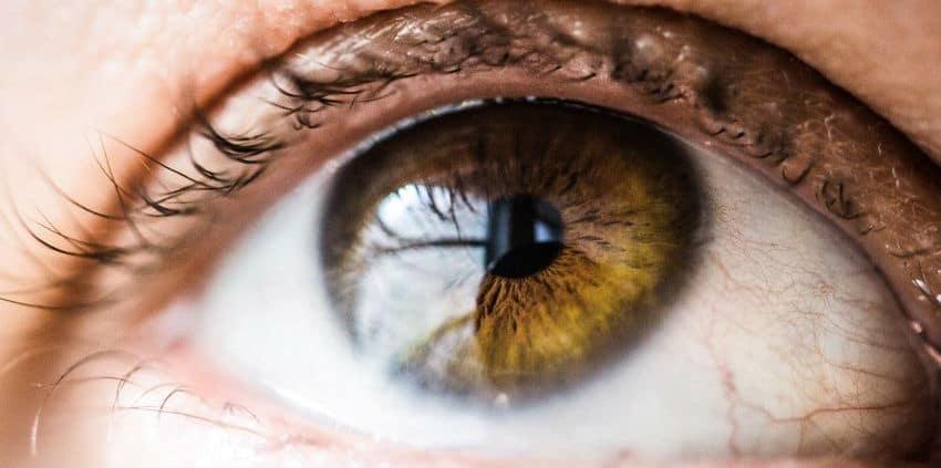 edema corneal o cornea opaca