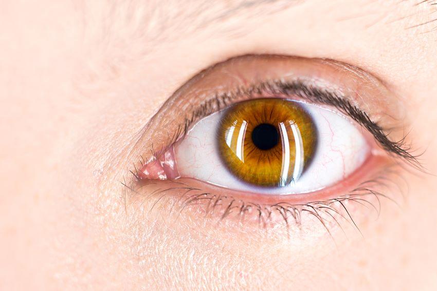 Lentillas y lentes de contacto, consejos para elegir la más adecuada