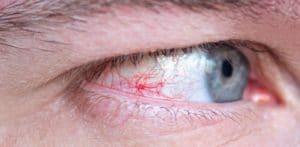 herpes ojo causas
