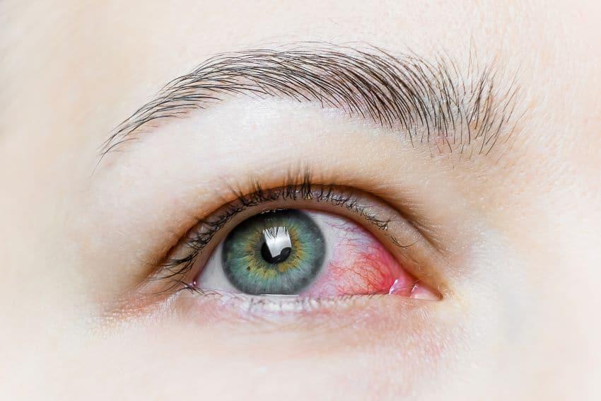 conjuntivitis vírica, conjuntivitis bacteriana, conjuntiva, limpieza ojos
