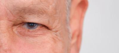 glaucoma, día mundial glaucoma, prevención