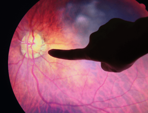 Retinopatía diabética: Importancia del control de la diabetes en salud ocular a largo plazo